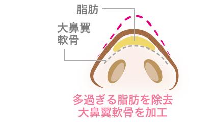 鼻尖形成術