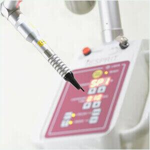 美肌治療で大阪ならPSC イボ、ホクロにCO2高周波レーザー(Esprit)