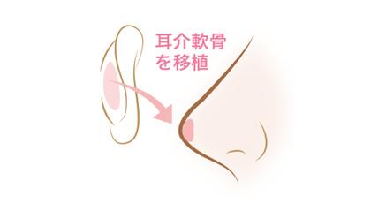 耳介軟骨移植(鼻)