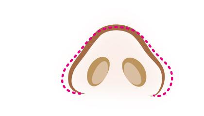 小鼻縮小整形術
