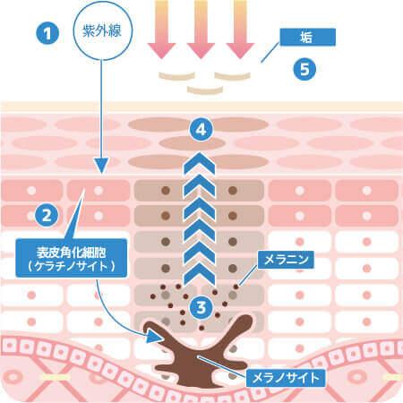シミ治療なら大阪のPCS 通常