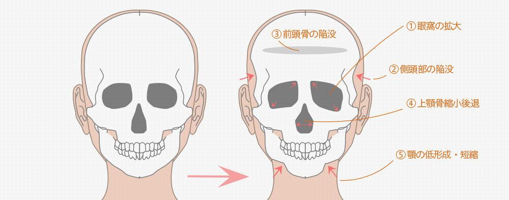 骨の変化(骨吸収)詳細図