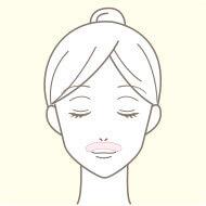 梅田院の医療脱毛の部位 鼻下
