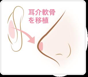 鼻整形隆鼻術(プロテーゼ)
