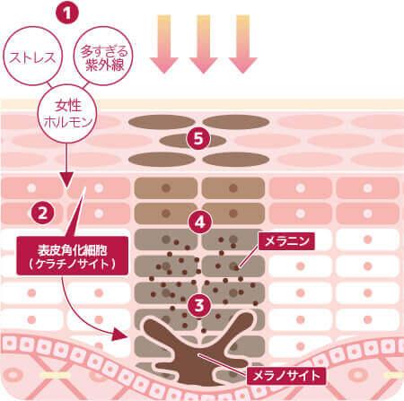 シミ治療なら大阪のPCS シミが出来る場合