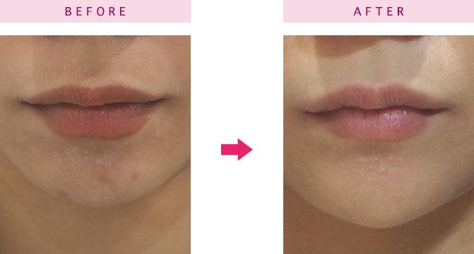 顎へヒアルロン酸を注入した女性の口元