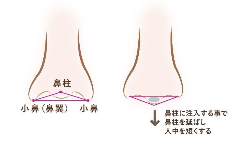 鼻柱にヒアルロン酸を注入する事で、鼻柱を延ばし人中を短くする