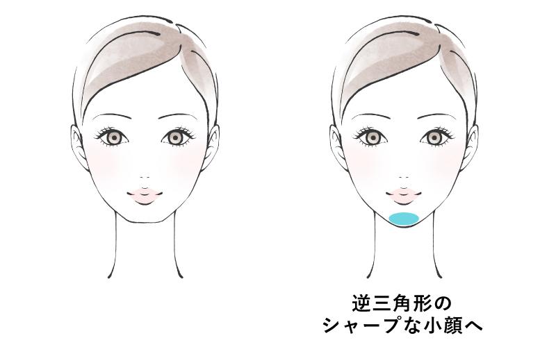 顎にヒアルロン酸を注入する事で縦の長さが強調され、フェイスラインが逆三角形のほっそりとしたシャープな印象に変わります