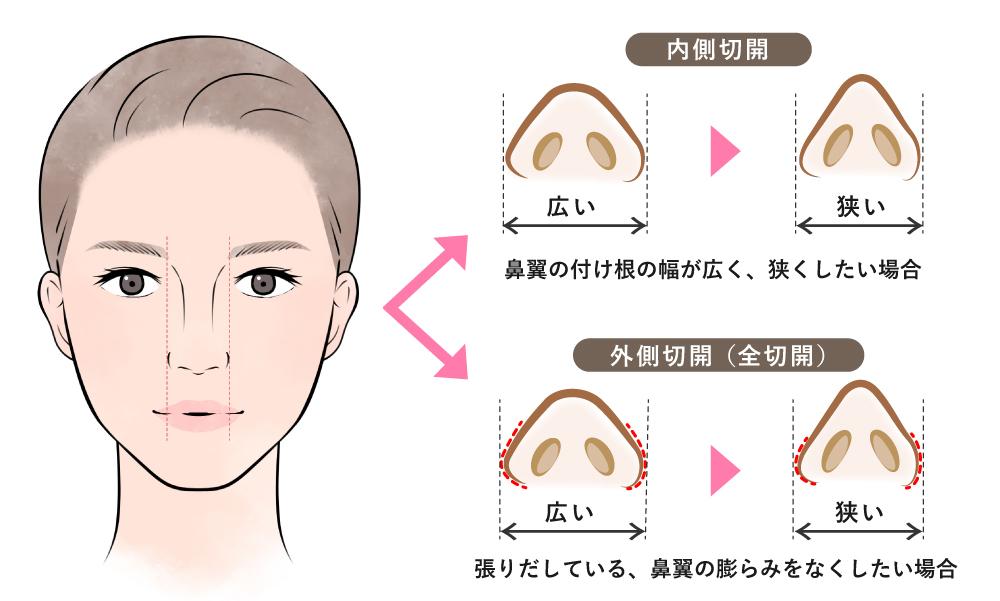 小鼻縮小整形術の内側切開と外側切開