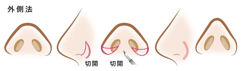 小鼻縮小整形術 外側切開(全切開)