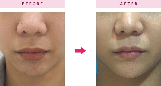 唇ヒアルロン酸 大阪 症例画像