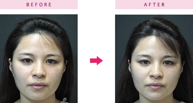 顎へヒアルロン酸を注入した女性の顔