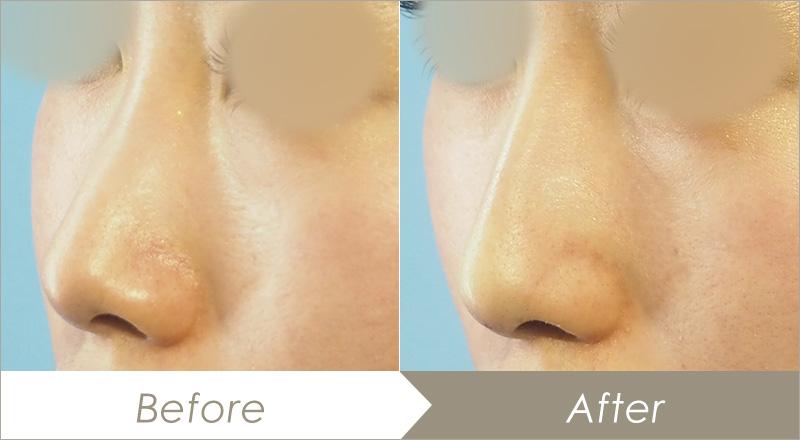 ヒアルロン酸注入(鼻)の症例(ジュビダームビスタ ボラックスXC)