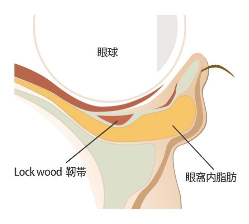 下瞼脂肪取りは大阪梅田のプライベートスキンクリニック