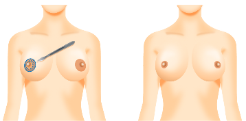 乳輪縮小手術(外側切開法)