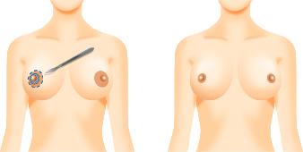 乳輪縮小手術(内側切開法)