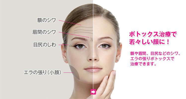 ボトックス注射で額や眉間、目尻などのしわを改善