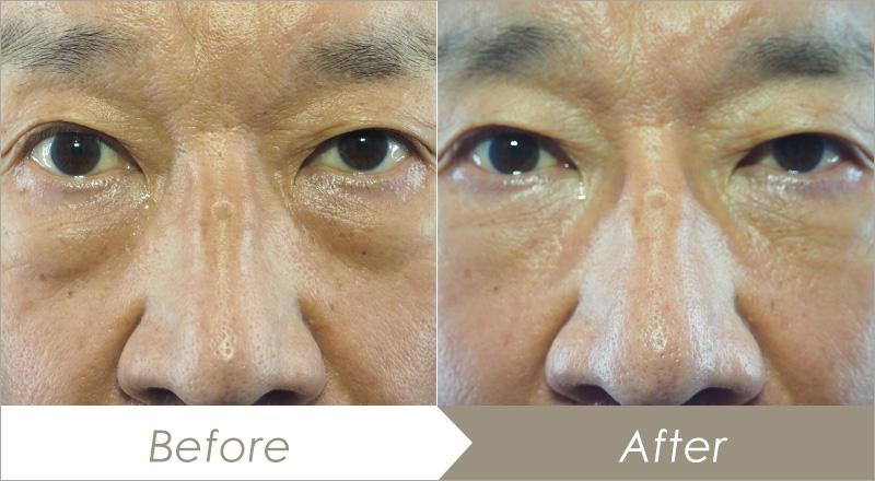 下瞼脂肪取りの症例(ビフォーアフター)