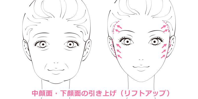 フェイスリフトは、頬や目尻の下がりなど、顔のたるみを全体的に取り除く施術です。