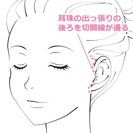 フェイスリフト 耳の前や生え際あたりを小さく切開するため傷跡が目立ちません。髪を極端に結い上げない限り翌日からの仕事も可能です。