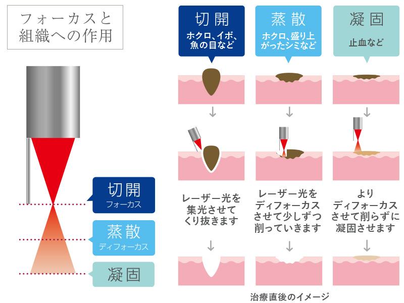 炭酸ガス(CO2)レーザーの作用