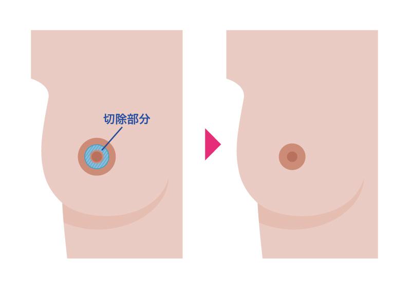乳輪縮小術(内側切開法)