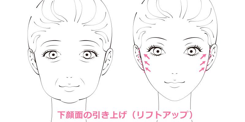 ミニリフト 大阪 頬のたるみやほうれい線の改善
