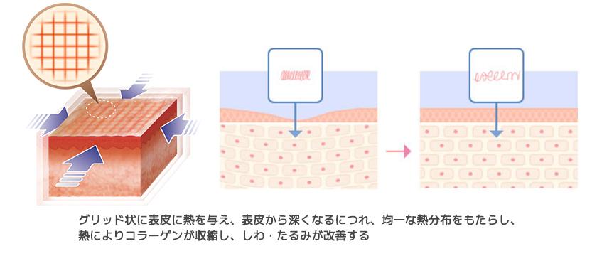 ウルトラセル イントラジェン(GFR)1.コラーゲン収縮による即効性(引き締め効果)なら大阪梅田プライベートスキンクリニックで
