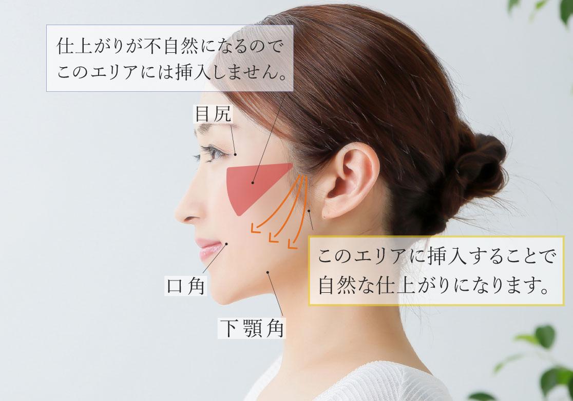 梅田美容皮膚科 糸でのスレッドリフト(セルフロック)とは