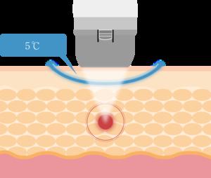 メディカルダイエット機器「リポセル」独自のクーリング(冷却)技術