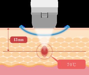 メディカルダイエットマシン「リポセル」のHIFU技術