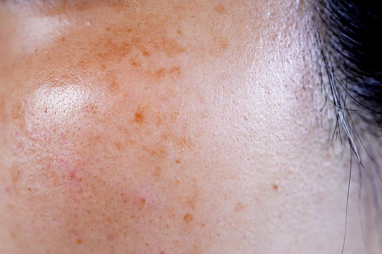 30~40代頃に多く見られる肝斑