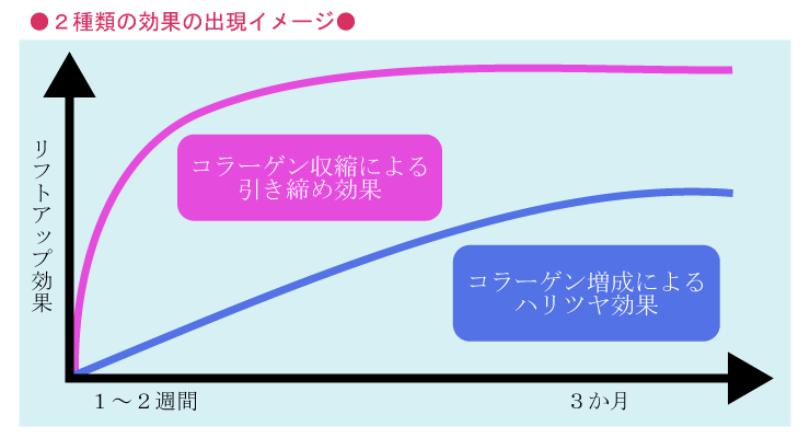 ウルトラセル イントラジェン(GFR)2.コラーゲン増成による持続性(ハリ・ツヤ効果)なら大阪梅田プライベートスキンクリニックで