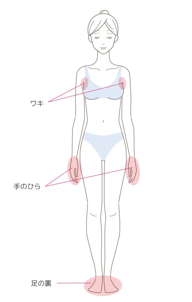 ボトックス注入による多汗症治療の施術部位