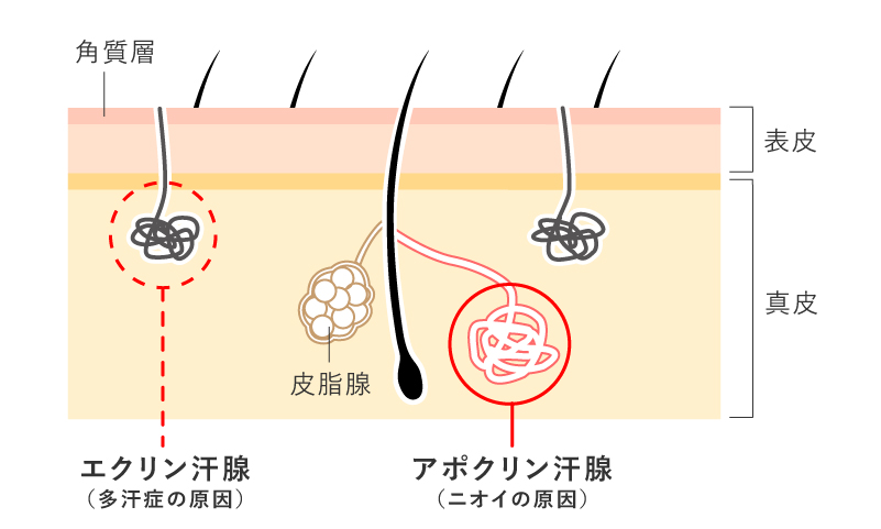 腋臭の原因 アポクリン線