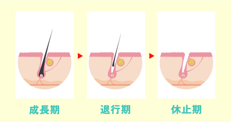 体毛の毛周期は「成長期」「退行期」「休止期」がある