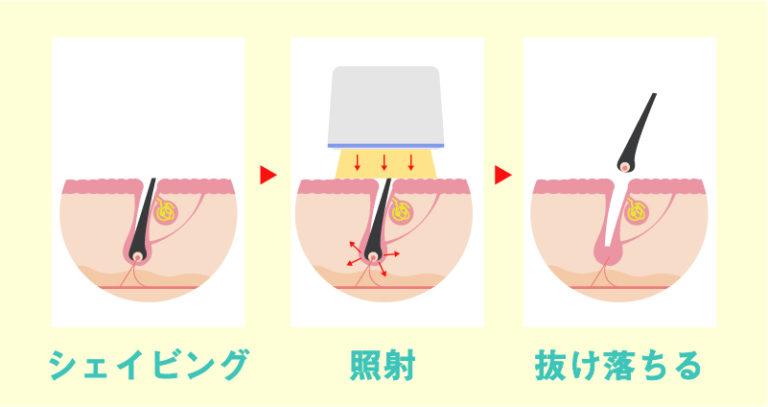 医療レーザー脱毛のタイミング