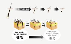 梅田美容クリニックのプロペシア処方