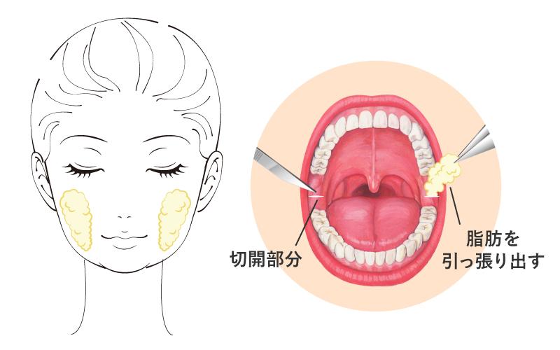 頬脂肪除去(バッカルファット除去)手術とは口の内側の粘膜を1~2cm程度切開したのち、バッカルファットを引き出し、切除します