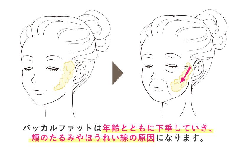 バッカルファットは年齢とともに下垂していき、頬のたるみやほうれい線の原因になります。