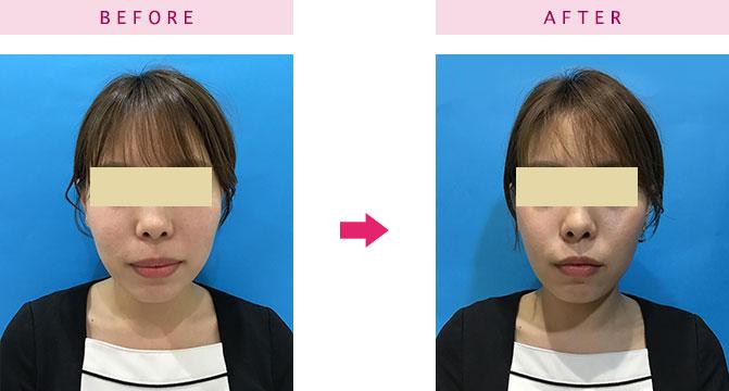 頬脂肪除去(バッカルファット除去)手術症例