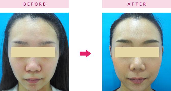 鼻尖形成術の症例
