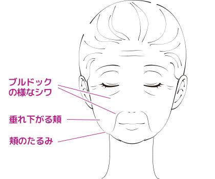こんなお悩みには頬脂肪除去(バッカルファット除去)手術がおすすめです