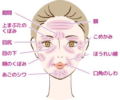 顔のたるみ・ほうれい線・額などのシワにお悩みなら大阪梅田プライベートスキンクリニックのヒアルロン酸リフト