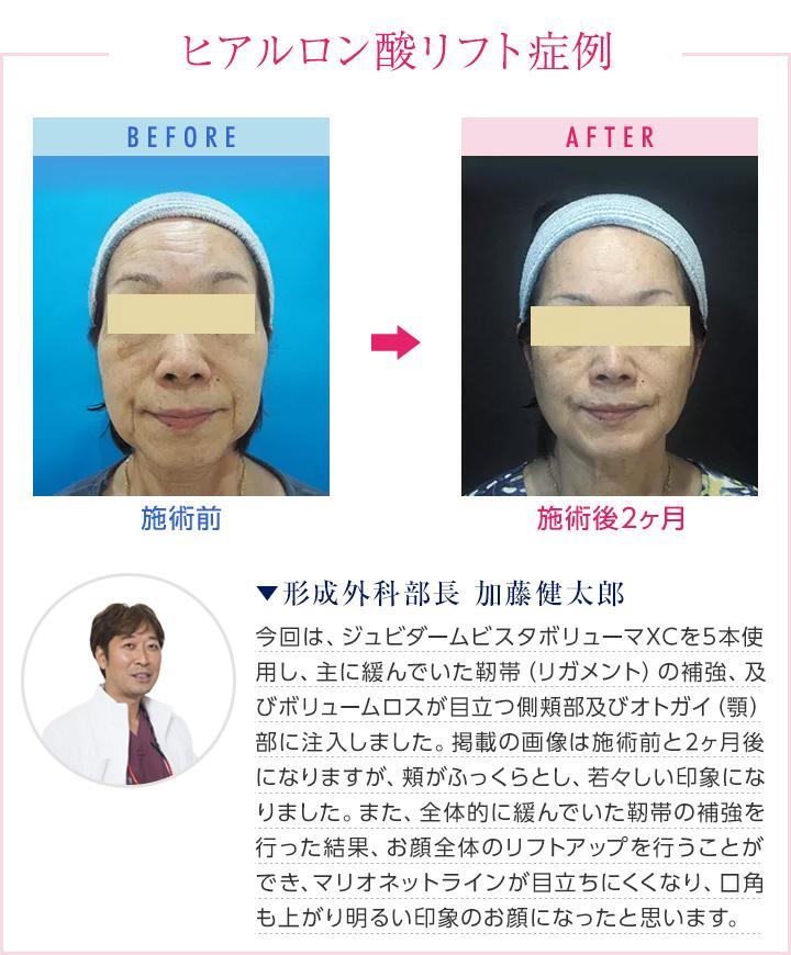 女性のヒアルロン酸注射前後の画像