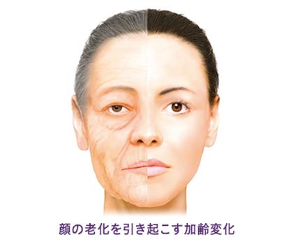 顔の老化を引き起こす加齢変化にはヒアルロン酸リフト(ビスタシェイプ)は大阪梅田のプライベートスキンクリニック