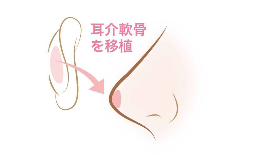 耳介軟骨移植は大阪梅田のプライベートスキンクリニック