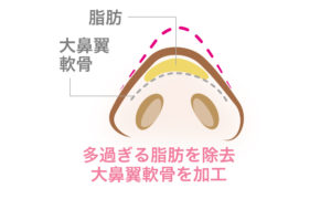 鼻尖形成術(団子鼻)