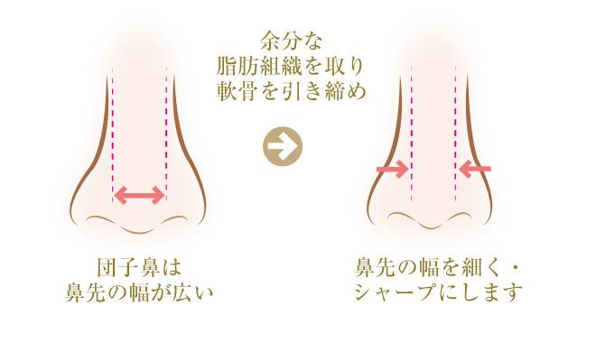 団子鼻は 鼻先の幅が広いので余分な脂肪組織を取り軟骨を引き締め鼻先の幅を細く・ シャープにします
