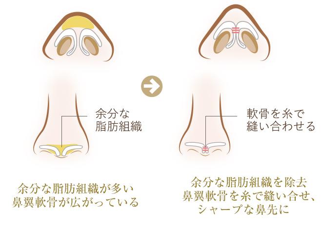 余分な脂肪組織が多い 鼻翼軟骨が広がっている余分な脂肪組織を除去 鼻翼軟骨を糸で縫い合せシャープな鼻先に
